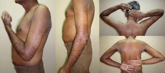 La polvere per candeggiare di pelle